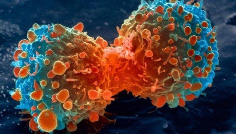 ¿Por qué es tan difícil curar el cáncer?